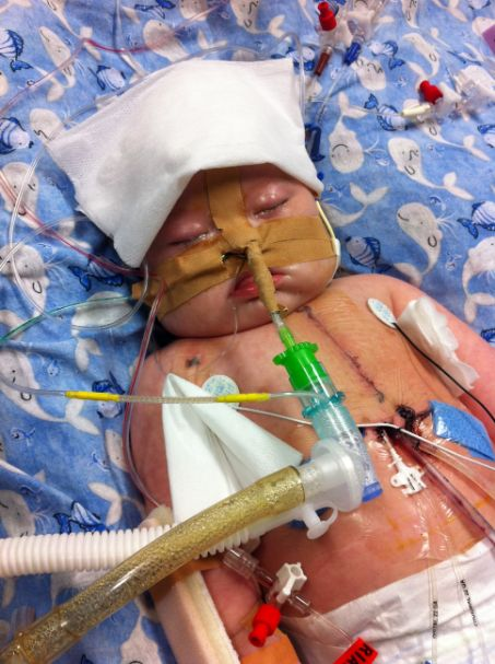 Noah post 2nd open heart surgery